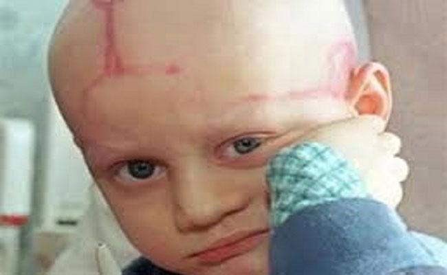خطير جدا / الحركي بعدما لم يعد ينفعهم الارهاب أرادوا قتل الشعب بالسرطان