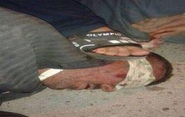 منظمة العفو الدولية قوات البشمركة الكردية والفصائل الشيعية قاموا بجرائم حرب في الموصل