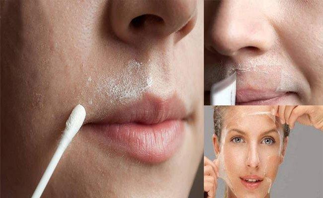 تخلّصي من احمرار الوجه بعد ازالة الشعر بهذه الخطوات البسيطة!