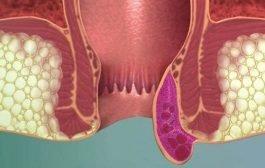 هل تهدّد البواسير بإصابتك بمرض السرطان؟