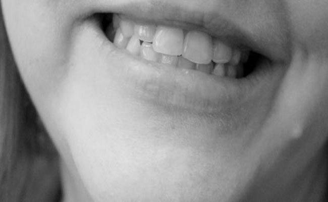 نصائح وعلاجات طبيعية تخلّصك من السواد حول الفم!