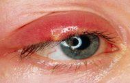 كيف يمكن الوقاية من شحاذ العين؟