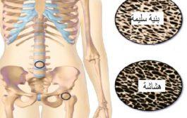 هل يُسبّب مرض هشاشة العظام الألم؟