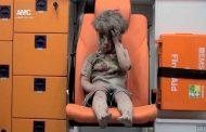 روسيا : لسنا سبب إصابة الطفل