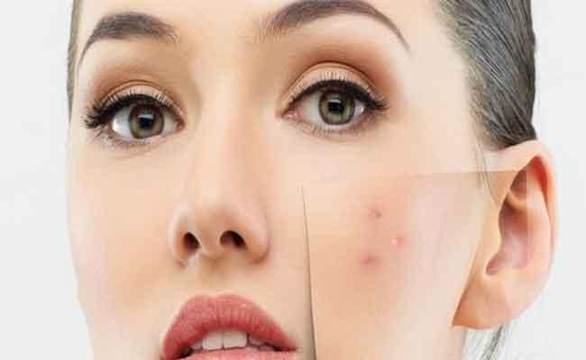 أفضل 3 علاجات للتخلص من البثور الحمراء في الوجه!