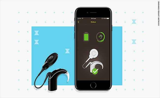 سماعة أذن جديدة من Cochlear لمستخدمي أي فون الذين يعانون بمشاكل بالسمع