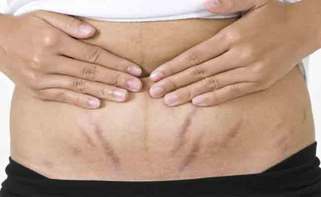 4 علاجات منزلية تخلّصك من علامات التمدّد... جرّبيها!