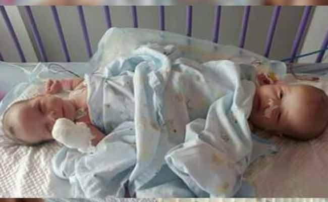 عملية جراحية ناجحة لفصل توأم ملتصق من ميلة بمستشفى بباريس