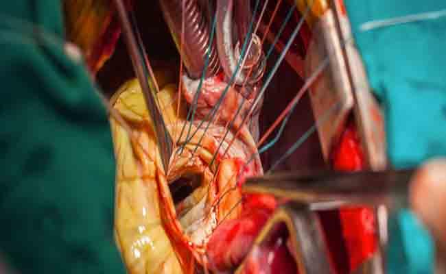 هل تعتبر عملية القلب المفتوح خطيرة؟