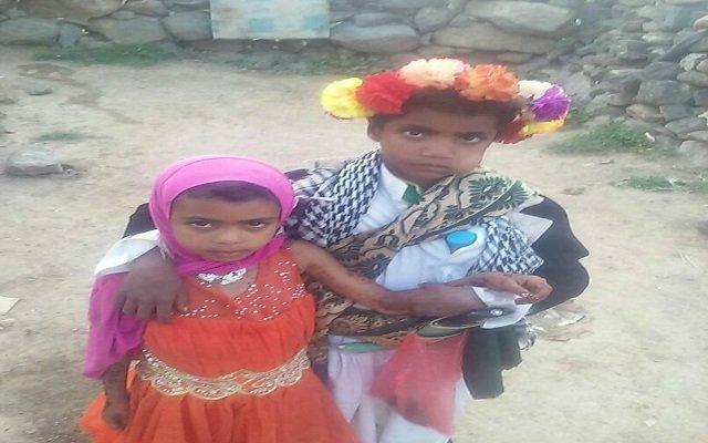 أصغر عروسين في العالم من اليمن !!!