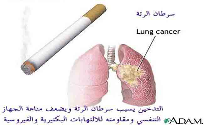 كيف يؤثر التدخين على الجهاز الهضمي؟