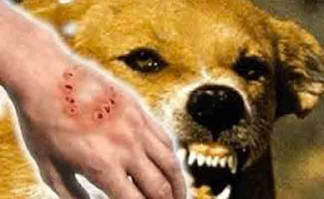 إن أصبتم بداء الكلب... إليكم هذه الطرق العلاجية!