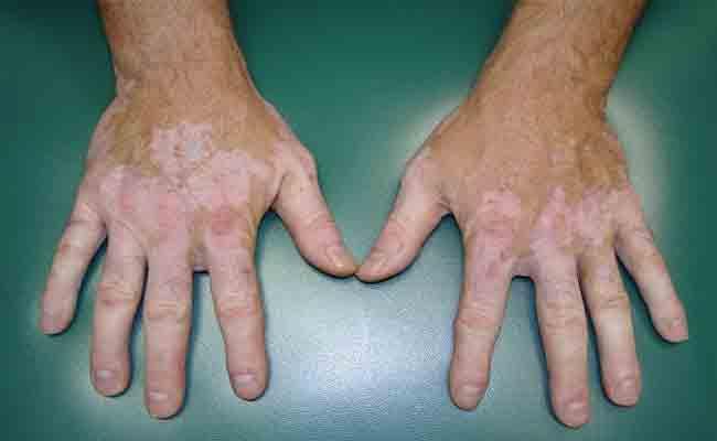 ما هي الاسباب التي تؤدي الى تغير لون الجلد؟