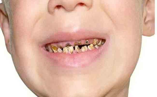 ما هي الاسباب المؤدية الى تآكل الاسنان عند الاطفال؟