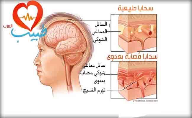 ما هو التهاب السحايا المعدي؟