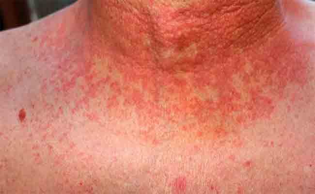 تسجيل إصابة 128 شخصا بالحمى المالطية بالوادي