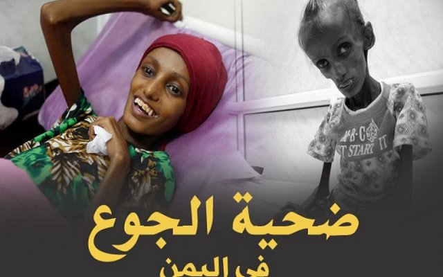 نذالة الحوثيون يسرقون الطعام من أفواه الجائعين