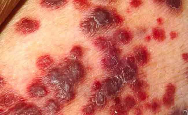 كيف يمكن الوقاية من مرض الزهري؟