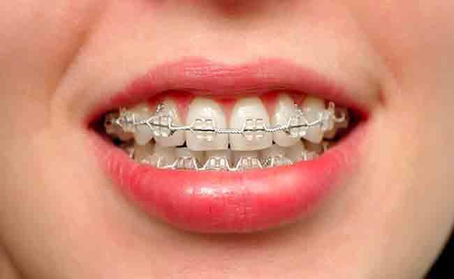 هل تعرفين أنّ هناك 4 أنواع من تقويم الاسنان؟