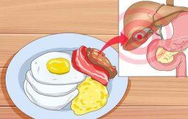 نصائح غذائية مفيدة لتجنّب أعراض حصوات المرارة