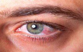 اتبعوا هذه النصائح لعلاج العيون من خدش الأظافر!