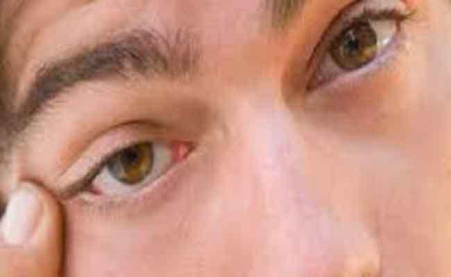 أسباب وأعراض حكة العين...