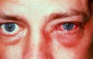 ما أسباب إحمرار العين وطرق علاجها...؟