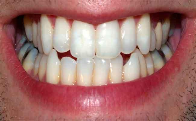 اختلاف نوعية الأسنان...