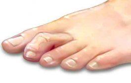 ما هي تشوّهات أصابع القدم الأكثر شيوعاً...؟