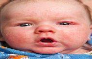 هذه الأسباب قد تؤدي إلى احمرار جلد الرضيع...!