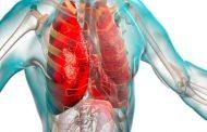 ما هي أبرز أعراض وأسباب الإنسداد الرئوي...؟