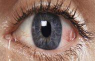 تدميع العين قد يعود لهذه الأسباب... ما هي...؟