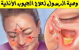 ماذا تعرفون عن التهاب الجيوب الأنفية...؟