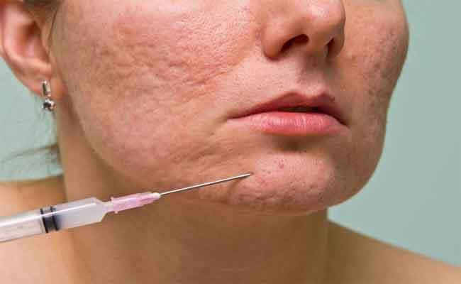 ما هي خطوات جراحة تجميل ندبات الوجه...؟