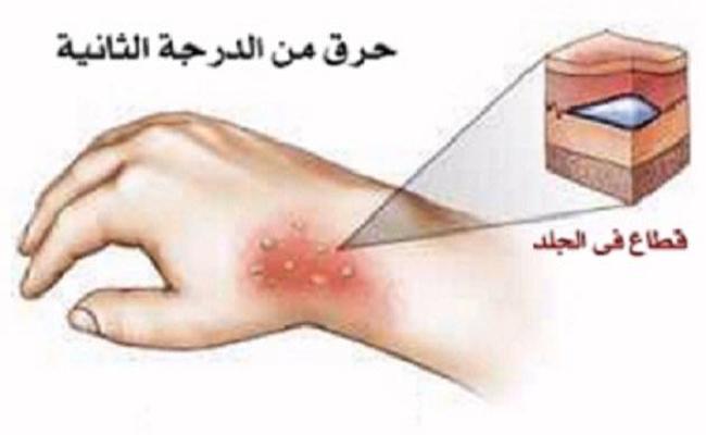 علاجات بسيطة للحروق الناتجة عن المشروبات الساخنة...
