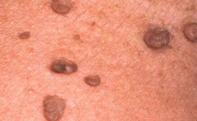 هل تسبب الأورام السرطانية الألم...؟