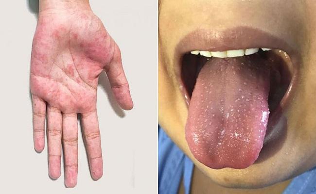 مرض الكاواساكي يظهر من جديد في سطيف