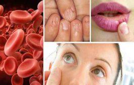 ما هو نقص الهيموجلوبين؟ وما علاقته بفقر الدم؟...