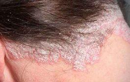 هل يمكن علاج صدفية فروة الرأس في المنزل؟...