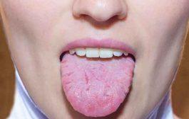 هل التهاب اللسان يشير الى انّكم مصابين بفيروس كورونا؟...