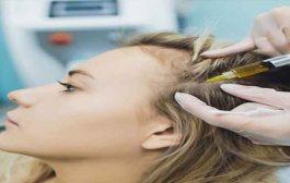 حقن البلازما تجدد نمو الشعر وتقوّيه...لكن هل من أضرار محتملة؟
