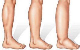 كيف تتعرفون على أعراض احتباس الماء تحت الجلد؟ وما هي طرق علاجه؟