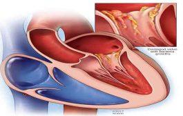 هل تسبّب الإصابة بفيروس كورونا التهابات القلب؟