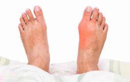 4 خطوات مهمّة للسيطرة على اعراض مرض النقرس